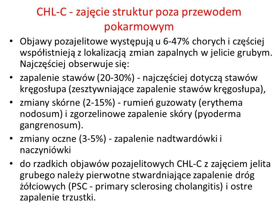 CHL-C - zajęcie struktur poza przewodem pokarmowym Objawy pozajelitowe występują u 6-47% chorych i częściej współistnieją z lokalizacją zmian zapalnyc