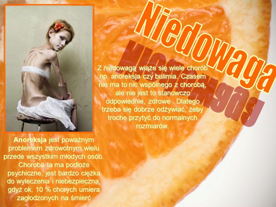 Anoreksja jest poważnym problemem zdrowotnym wielu przede wszystkim młodych osób. Choroba ta ma podłoże psychiczne, jest bardzo ciężka do wyleczenia i
