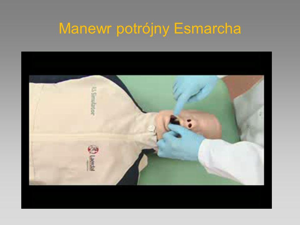 Ogólne zasady tlenoterapii W ratownictwie stosujemy maksymalne dostępne stężenie tlenu ( dążymy do 100 % ) W lecznictwie minimalne stężenie tlenu Przepływ tlenu na reduktorze należy dostosować do używanego sprzętu