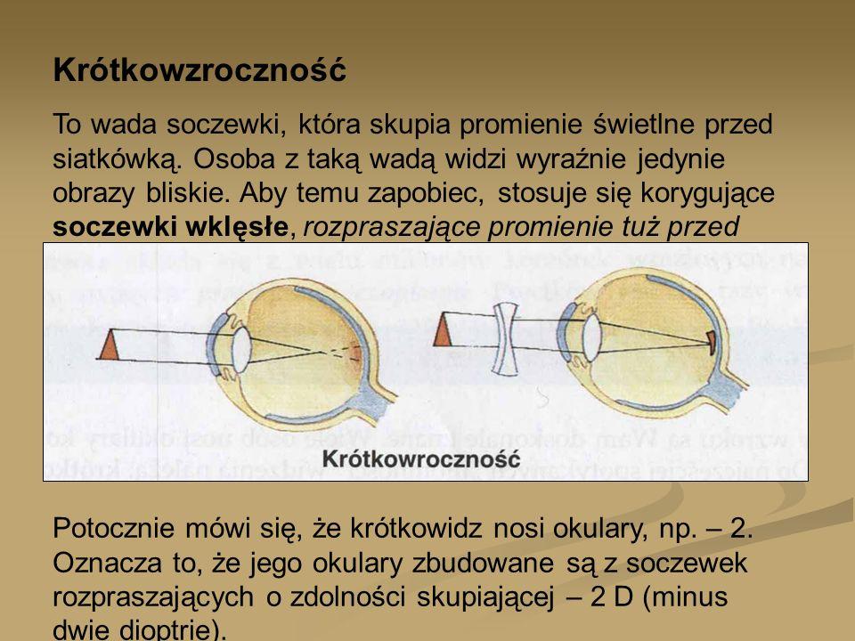 Dalekowzroczność Jest również wadą soczewki, która powoduje, że promienie światła są skupione dopiero za siatkówką.