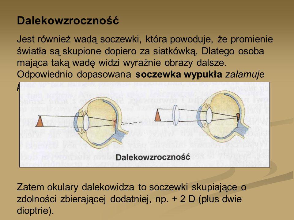 Dalekowzroczność Jest również wadą soczewki, która powoduje, że promienie światła są skupione dopiero za siatkówką. Dlatego osoba mająca taką wadę wid