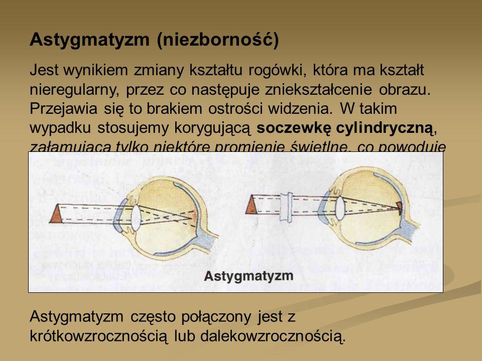 Astygmatyzm (niezborność) Jest wynikiem zmiany kształtu rogówki, która ma kształt nieregularny, przez co następuje zniekształcenie obrazu. Przejawia s