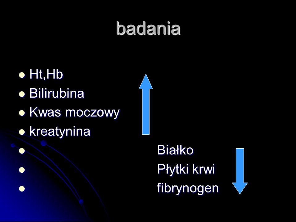 badania Ht,Hb Ht,Hb Bilirubina Bilirubina Kwas moczowy Kwas moczowy kreatynina kreatynina Białko Białko Płytki krwi Płytki krwi fibrynogen fibrynogen