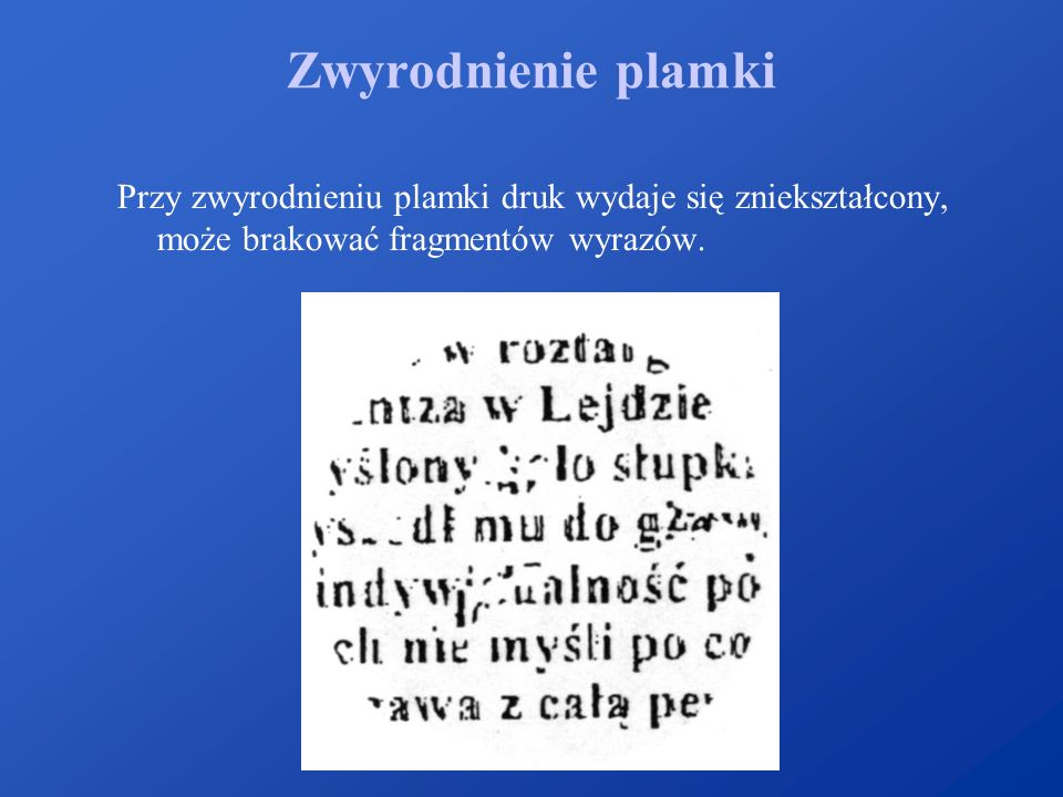 Zwyrodnienie plamki Przy zwyrodnieniu plamki druk wydaje się zniekształcony, może brakować fragmentów wyrazów.