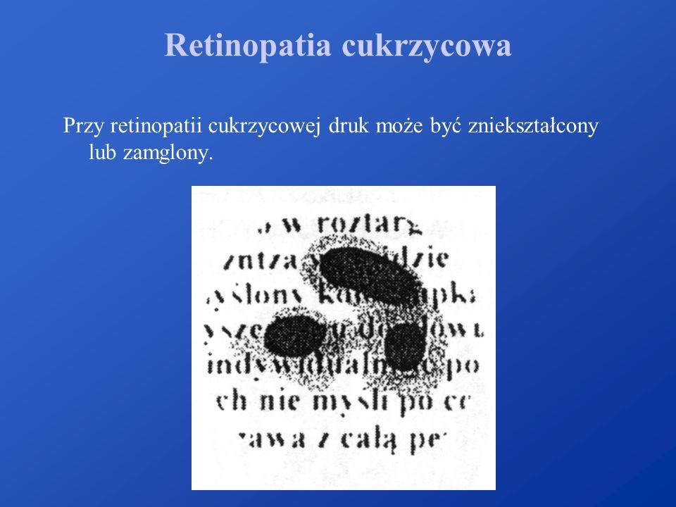 Retinopatia cukrzycowa Przy retinopatii cukrzycowej druk może być zniekształcony lub zamglony.