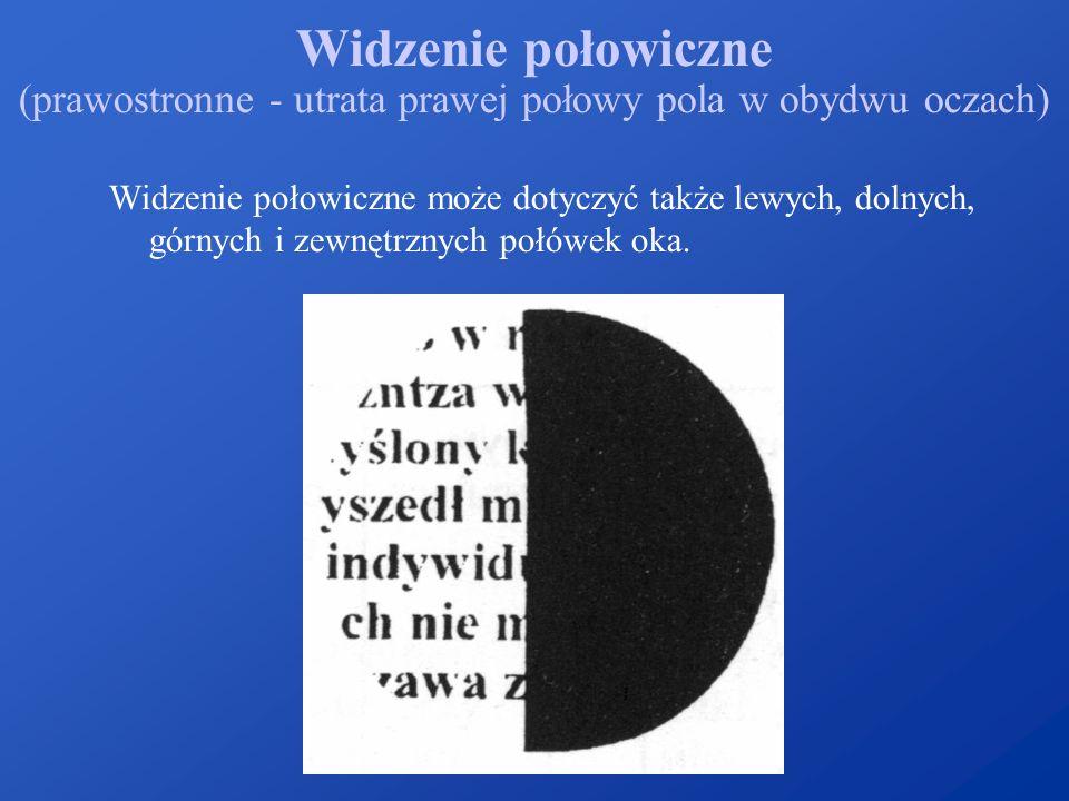 Widzenie połowiczne (prawostronne - utrata prawej połowy pola w obydwu oczach) Widzenie połowiczne może dotyczyć także lewych, dolnych, górnych i zewn