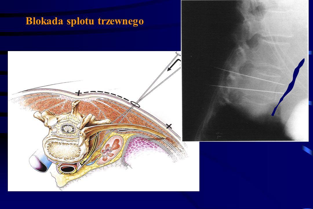 Leczenie bólu nowotworowego. Poza schematem WHO Leczenie onkologiczne: radioterapia chemioterapia leczenie hormonalne Inny silny opioid lub podawany i
