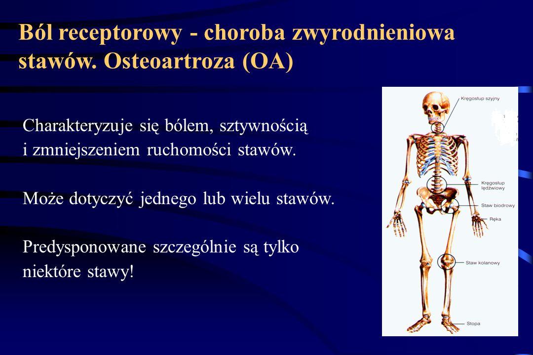 Ból receptorowy - choroba zwyrodnieniowa stawów. Osteoartroza (OA) Polega na postępującej utracie chrząstki stawowej, której towarzyszy niedostateczna