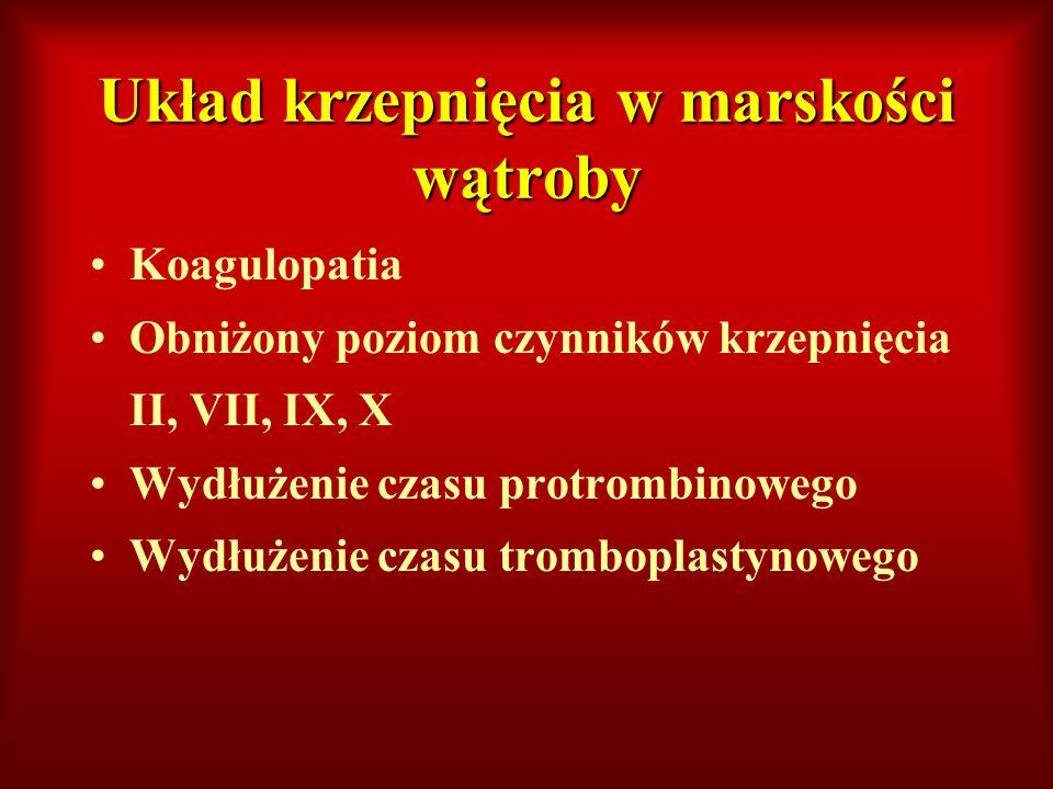 Układ krzepnięcia w marskości wątroby Koagulopatia Obniżony poziom czynników krzepnięcia II, VII, IX, X Wydłużenie czasu protrombinowego Wydłużenie cz