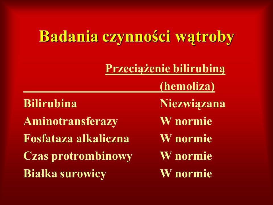 Badania czynności wątroby Przeciążenie bilirubiną (hemoliza) BilirubinaNiezwiązana AminotransferazyW normie Fosfataza alkalicznaW normie Czas protromb
