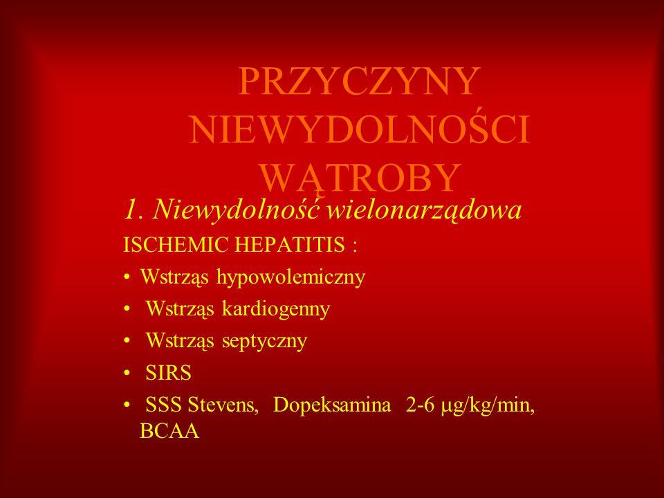 PRZYCZYNY NIEWYDOLNOŚCI WĄTROBY 1. Niewydolność wielonarządowa ISCHEMIC HEPATITIS : Wstrząs hypowolemiczny Wstrząs kardiogenny Wstrząs septyczny SIRS