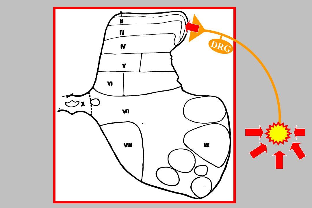 Lamotrigina Blokuje patologiczne kanały sodowych TTX-r, zlokalizowane w ogniskach patologicznych pobudzeń Zmniejsza uwalnianie EAA WSKAZANIA: ból neuropatyczny DAWKOWANIE: 50 - 200 mg/dobę Rowbotham MC et al.