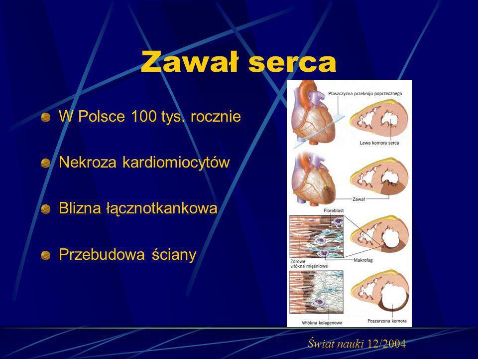 Zawał serca W Polsce 100 tys. rocznie Nekroza kardiomiocytów Blizna łącznotkankowa Przebudowa ściany Świat nauki 12/2004
