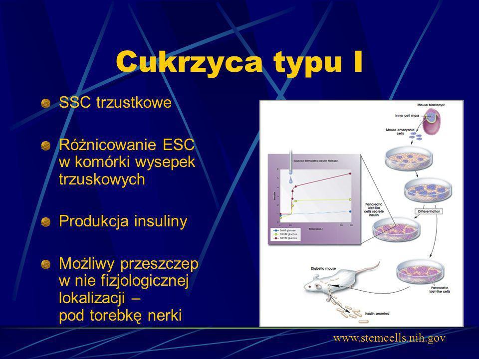 Cukrzyca typu I SSC trzustkowe Różnicowanie ESC w komórki wysepek trzuskowych Produkcja insuliny Możliwy przeszczep w nie fizjologicznej lokalizacji –