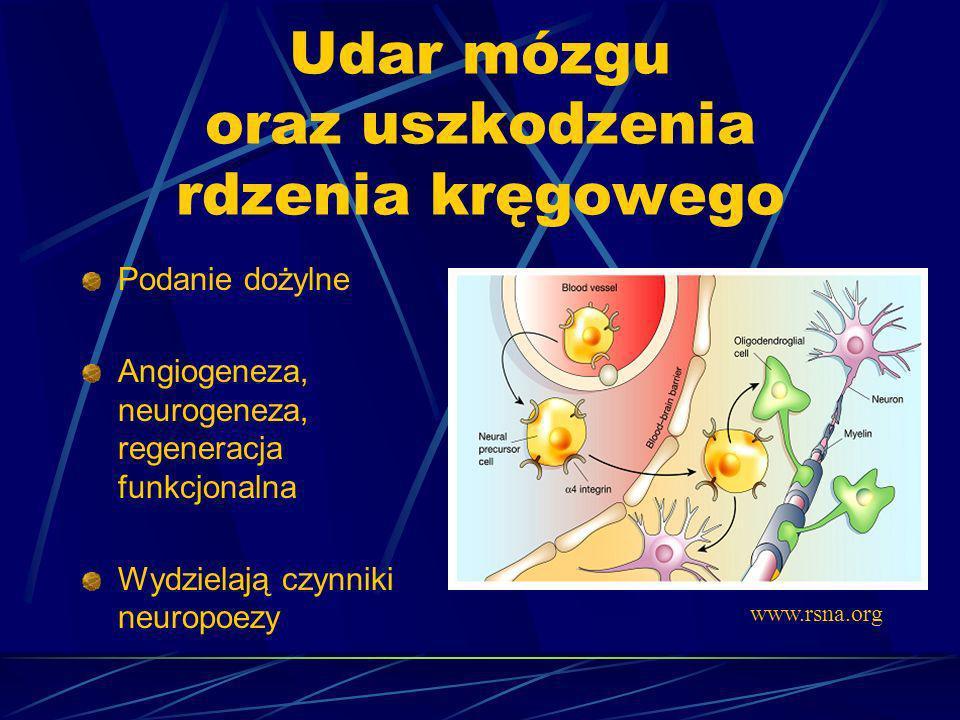 Udar mózgu oraz uszkodzenia rdzenia kręgowego Podanie dożylne Angiogeneza, neurogeneza, regeneracja funkcjonalna Wydzielają czynniki neuropoezy www.rs