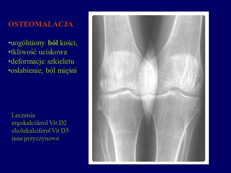 OSTEOMALACJA uogólniony ból kości, tkliwość uciskowa deformacje szkieletu osłabienie, ból mięśni Leczenie ergokalciferol Vit.D2 cholekalciferol Vit D3