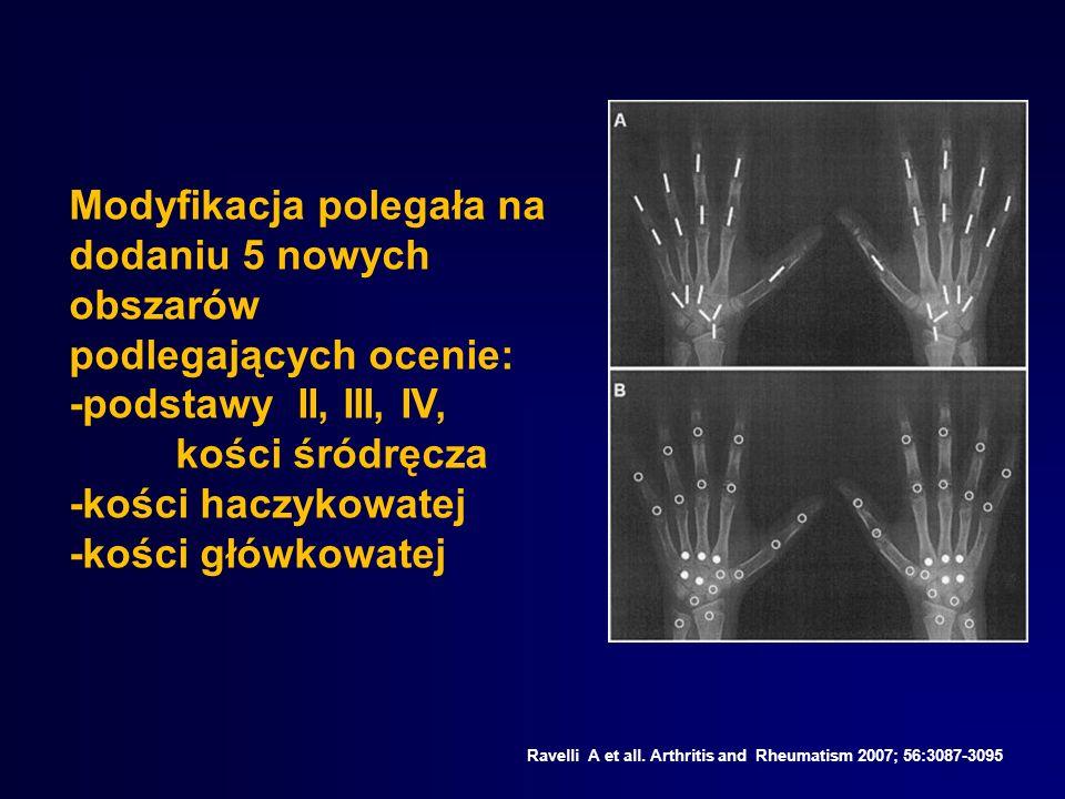 Ravelli A et all. Arthritis and Rheumatism 2007; 56:3087-3095 Modyfikacja polegała na dodaniu 5 nowych obszarów podlegających ocenie: -podstawy II, II