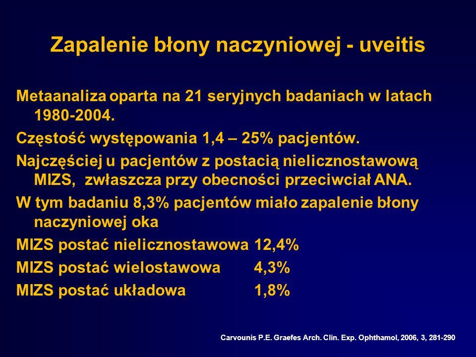 Zapalenie błony naczyniowej - uveitis Metaanaliza oparta na 21 seryjnych badaniach w latach 1980-2004. Częstość występowania 1,4 – 25% pacjentów. Najc