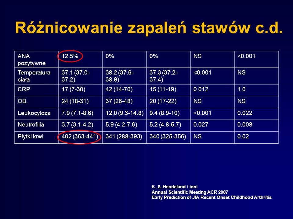 Różnicowanie zapaleń stawów c.d. ANA pozytywne 12.5%0% NS<0.001 Temperatura ciała 37.1 (37.0- 37.2) 38.2 (37.6- 38.9) 37.3 (37.2- 37.4) <0.001NS CRP17
