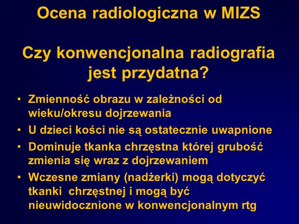 Ocena radiologiczna w MIZS Czy konwencjonalna radiografia jest przydatna? Zmienność obrazu w zależności od wieku/okresu dojrzewania U dzieci kości nie