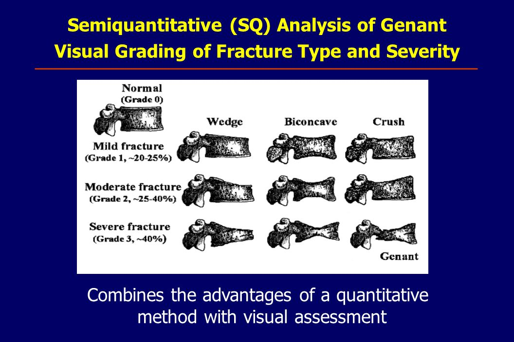 Semiquantitative (SQ) Analysis of Genant Visual Grading of Fracture Type and Severity Combines the advantages of a quantitative method with visual ass