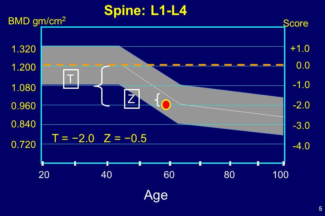5 Score T = 2.0 Z = 0.5 0.0 -2.0 -3.0 +1.0 T Z 20406080100 1.200 0.960 0.840 -4.0 0.720 1.080 1.320 BMD gm/cm 2 Spine: L1-L4 Age