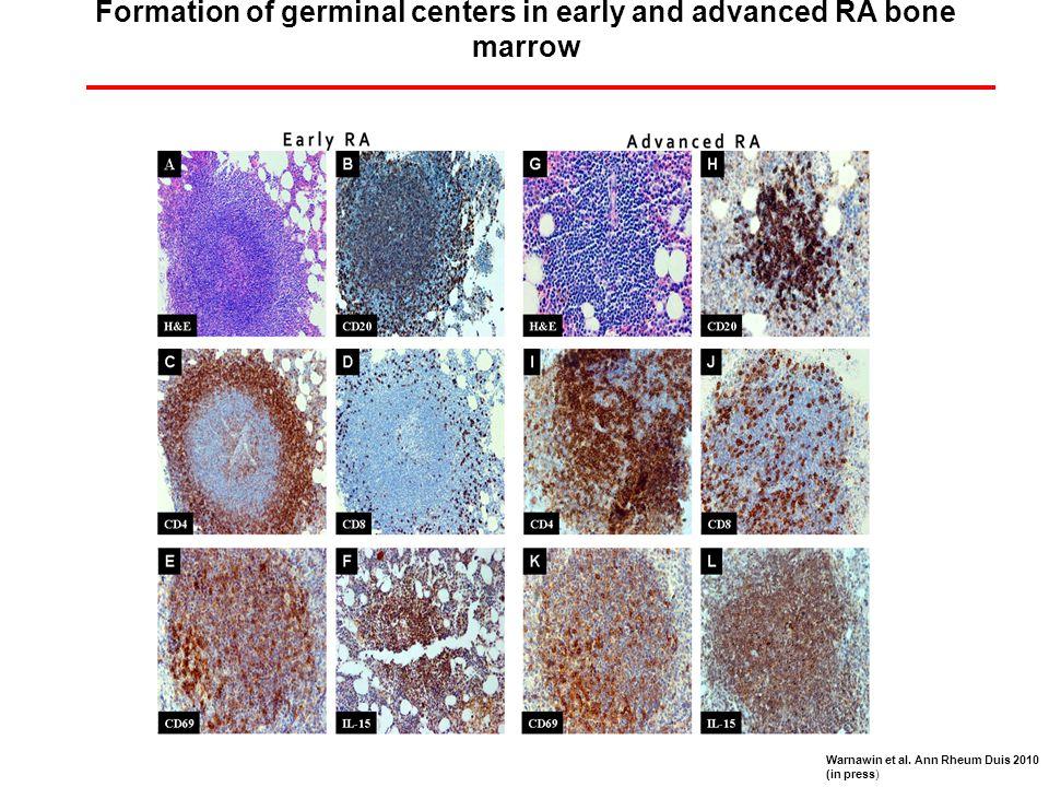 Formation of germinal centers in early and advanced RA bone marrow Warnawin et al. Ann Rheum Duis 2010 (in press)
