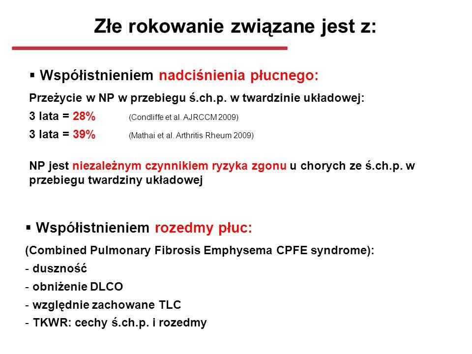 Złe rokowanie związane jest z: Współistnieniem nadciśnienia płucnego: Przeżycie w NP w przebiegu ś.ch.p. w twardzinie układowej: 3 lata = 28% (Condlif