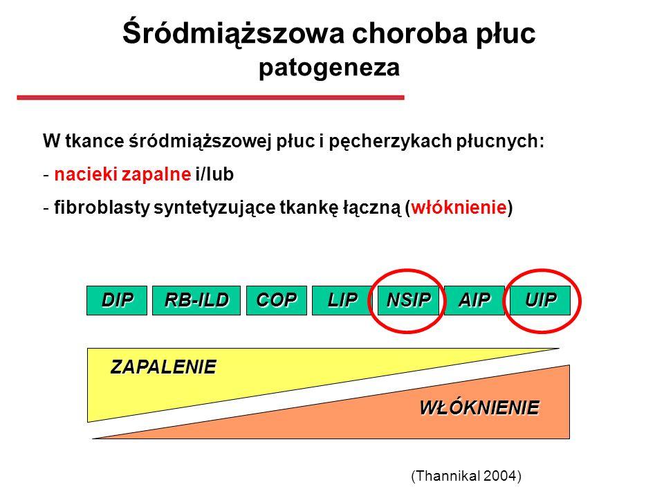 Śródmiąższowa choroba płuc patogeneza W tkance śródmiąższowej płuc i pęcherzykach płucnych: - nacieki zapalne i/lub - fibroblasty syntetyzujące tkankę
