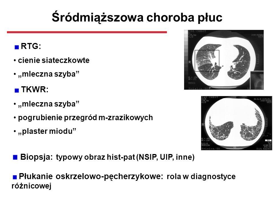 Śródmiąższowa choroba płuc RTG: cienie siateczkowte mleczna szyba TKWR: mleczna szyba pogrubienie przegród m-zrazikowych plaster miodu Biopsja: typowy