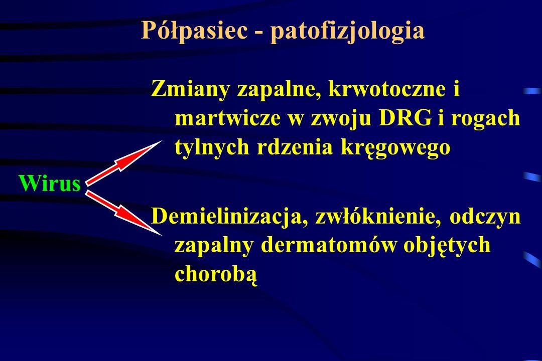 Półpasiec - patofizjologia Zmiany zapalne, krwotoczne i martwicze w zwoju DRG i rogach tylnych rdzenia kręgowego Demielinizacja, zwłóknienie, odczyn z