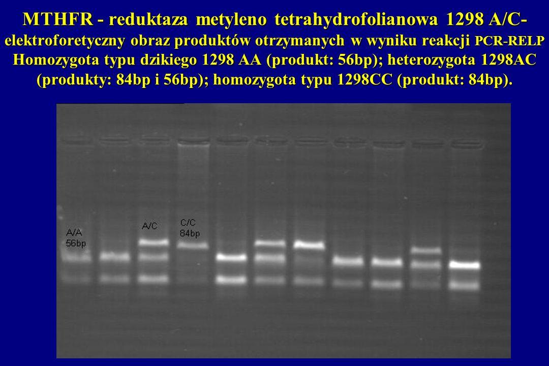 MTHFR - reduktaza metyleno tetrahydrofolianowa 1298 A/C- elektroforetyczny obraz produktów otrzymanych w wyniku reakcji PCR-RELP Homozygota typu dziki