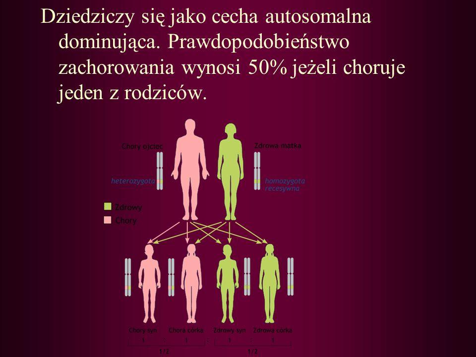 Dziedziczy się jako cecha autosomalna dominująca. Prawdopodobieństwo zachorowania wynosi 50% jeżeli choruje jeden z rodziców.