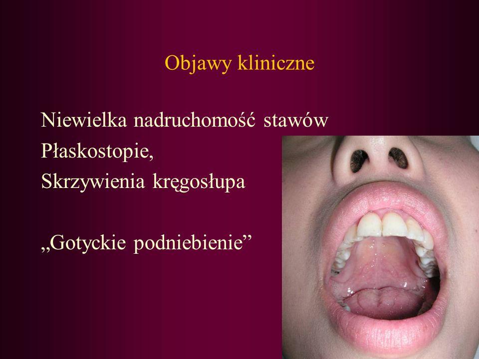 Objawy kliniczne Niewielka nadruchomość stawów Płaskostopie, Skrzywienia kręgosłupa Gotyckie podniebienie