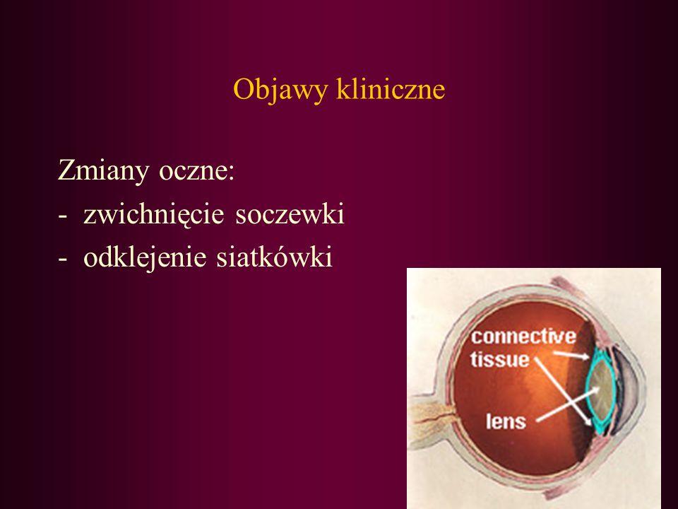 Objawy kliniczne Zmiany oczne: -zwichnięcie soczewki -odklejenie siatkówki