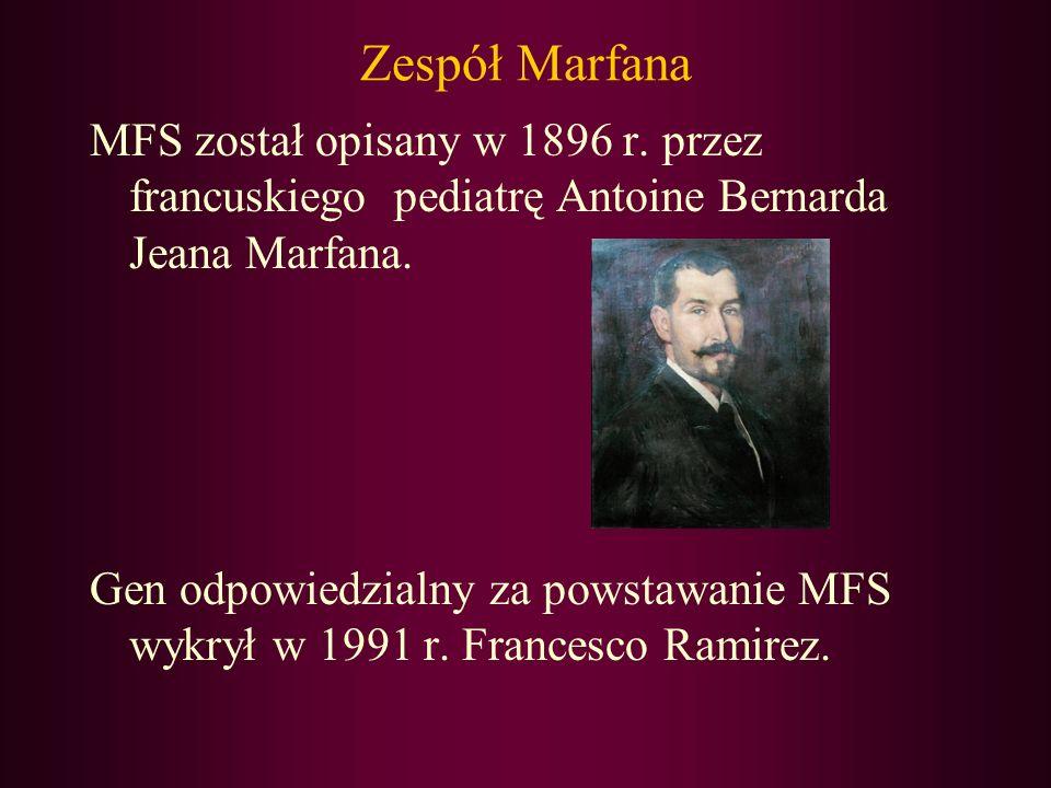 Zespół Marfana MFS został opisany w 1896 r. przez francuskiego pediatrę Antoine Bernarda Jeana Marfana. Gen odpowiedzialny za powstawanie MFS wykrył w