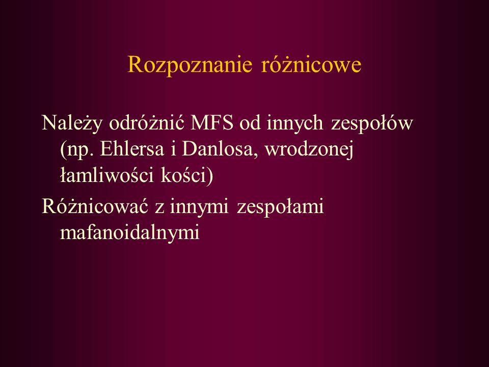 Rozpoznanie różnicowe Należy odróżnić MFS od innych zespołów (np. Ehlersa i Danlosa, wrodzonej łamliwości kości) Różnicować z innymi zespołami mafanoi