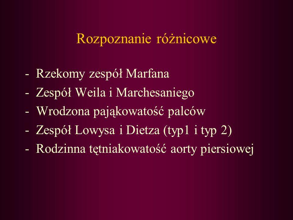Rozpoznanie różnicowe -Rzekomy zespół Marfana -Zespół Weila i Marchesaniego -Wrodzona pająkowatość palców -Zespół Lowysa i Dietza (typ1 i typ 2) -Rodz