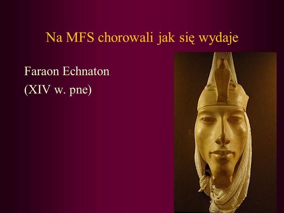 Na MFS chorowali jak się wydaje Faraon Echnaton (XIV w. pne)