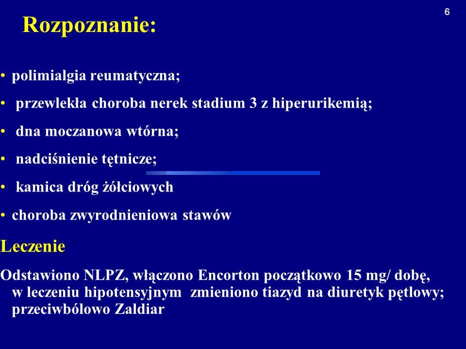 17 Kliniczne odmiany zespołu: olbrzymiokomórkowego zapalenia tętnic [GCA] / polimialgii reumatycznej Zapalenie tętnic czaszkowych /skroniowej/ : Bóle głowy Tkliwość skóry głowy Neuropatia niedokrwienna n.wzrokowego Chromanie żuchwy Zespoły niedokrwienne CUN (udar) Polimialgia reumatyczna Gorączka/zespół wyniszczenia: Gorączka, dreszcze Anoreksja, chudnięcie Nocne poty Osłabienie Depresja, zaburzenia funkcji poznawczych GCA dużych naczyń /zapalenie aorty (łuku) Brak tętna Objaw Raynaud Tętniak aorty Niewydolność zastawek aorty Polimialgia reumatyczna Izolowany zespół polimialgii reumatycznej Bóle mięśni obręczy barkowej, biodrowej Sztywność /poranna/ GCA Zespół polimialgii reumatycznej