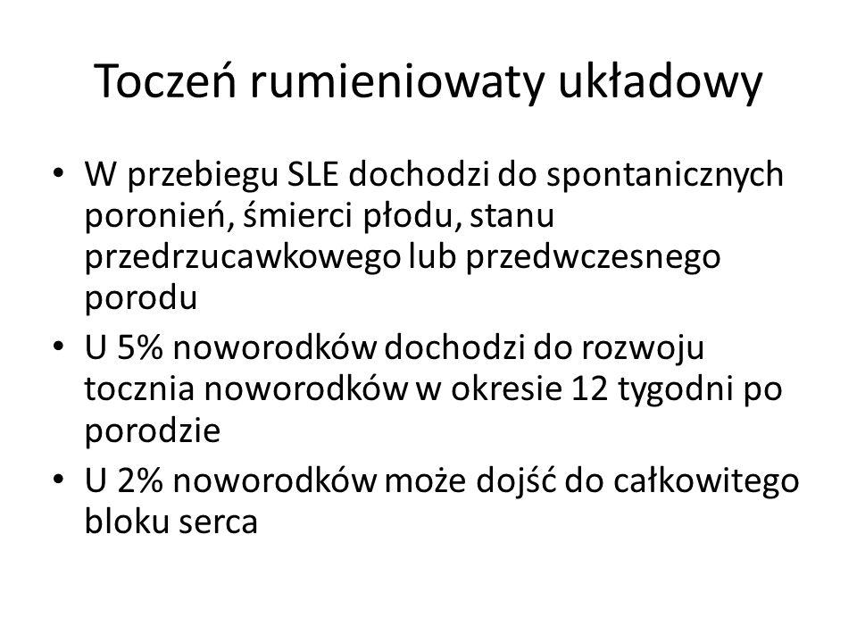 Toczeń rumieniowaty układowy W przebiegu SLE dochodzi do spontanicznych poronień, śmierci płodu, stanu przedrzucawkowego lub przedwczesnego porodu U 5