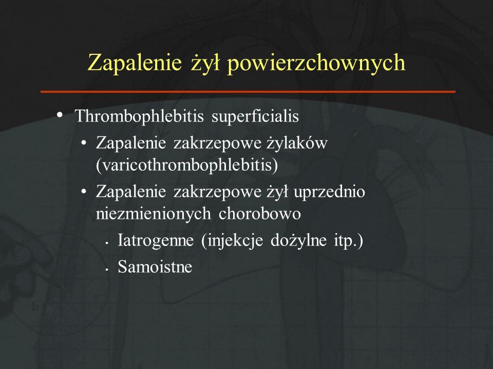 Zapalenie żył powierzchownych Thrombophlebitis superficialis Zapalenie zakrzepowe żylaków (varicothrombophlebitis) Zapalenie zakrzepowe żył uprzednio