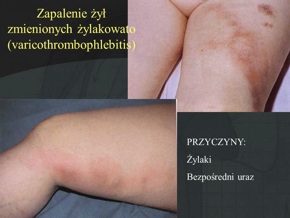 Zapalenie żył zmienionych żylakowato (varicothrombophlebitis) PRZYCZYNY: Żylaki Bezpośredni uraz