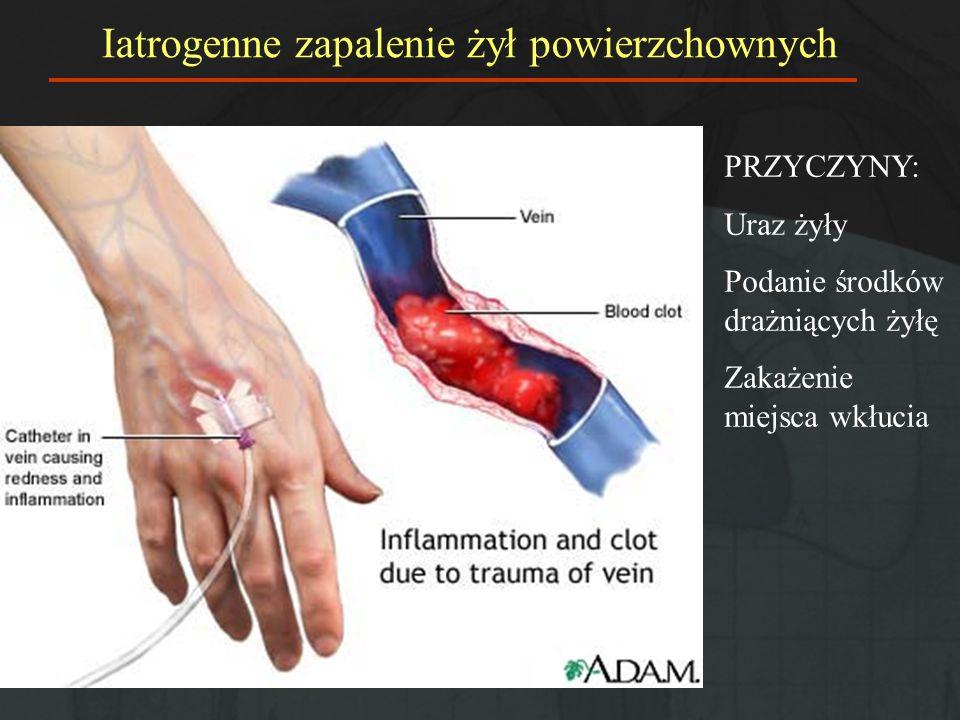 Ryzyko zakrzepicy żylnej (bez profilaktyki, chirurgia ogólna) ok.