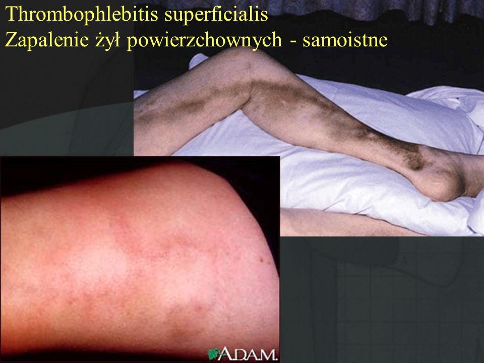 Przyczyny: Choroby nowotworowe Choroby tkanki łącznej Zapalenia naczyń (choroba Buergera) Zakażenia bakteryjne i wirusowe