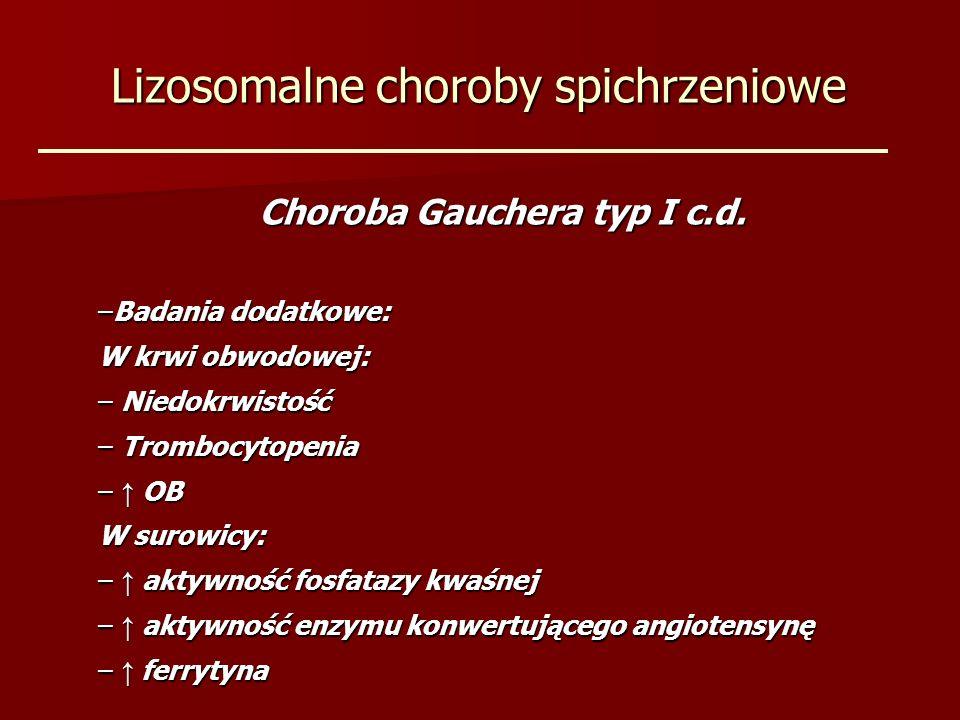 Lizosomalne choroby spichrzeniowe Choroba Gauchera typ I c.d. –Badania dodatkowe: W krwi obwodowej: – Niedokrwistość – Trombocytopenia – OB W surowicy