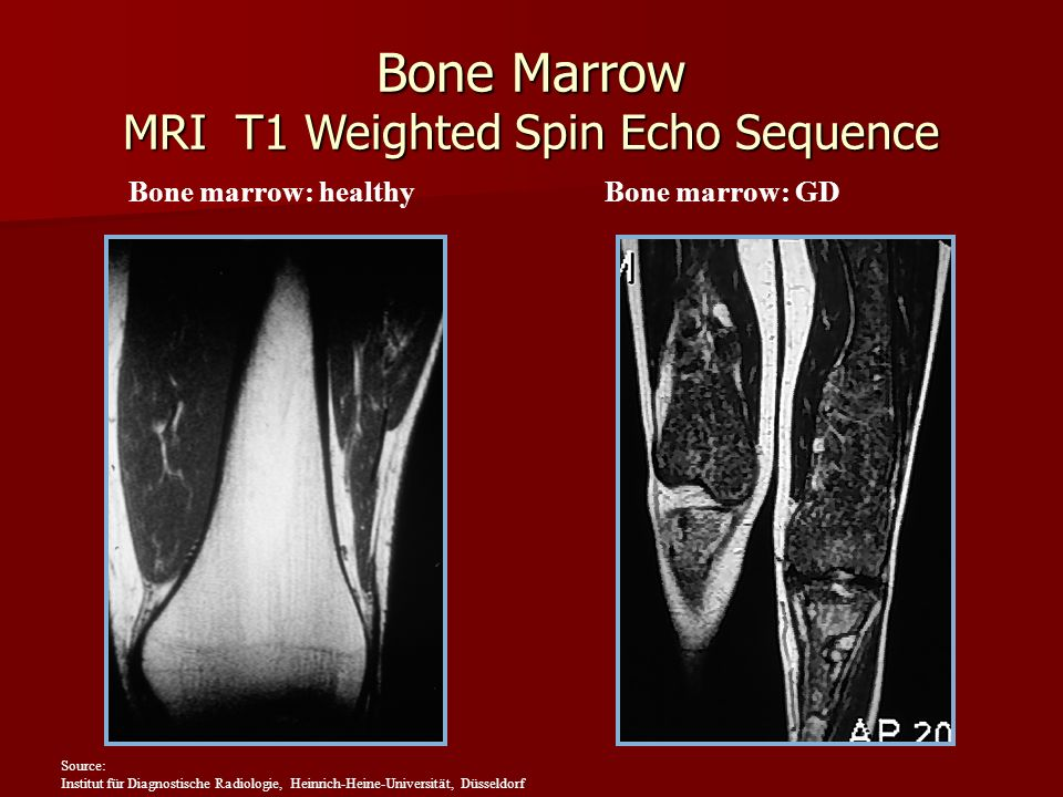 Bone Marrow MRI T1 Weighted Spin Echo Sequence Bone marrow: healthyBone marrow: GD Source: Institut für Diagnostische Radiologie, Heinrich-Heine-Unive