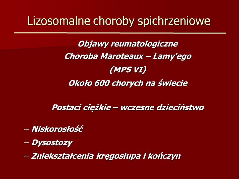 Lizosomalne choroby spichrzeniowe Objawy reumatologiczne Choroba Maroteaux – Lamy'ego (MPS VI) Około 600 chorych na świecie Postaci ciężkie – wczesne