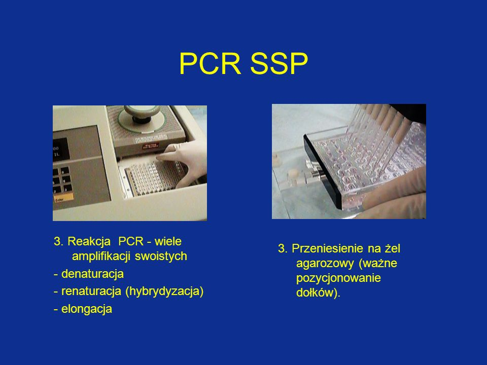 5. elektroforeza6. transiluminator PCR SSP