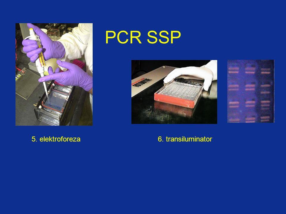 7. Zdjęcie i analiza wzoru prążków (archiwizacja) PCR SSP